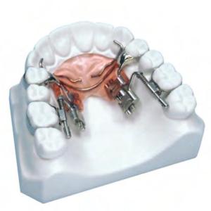 Ортодонтические винты